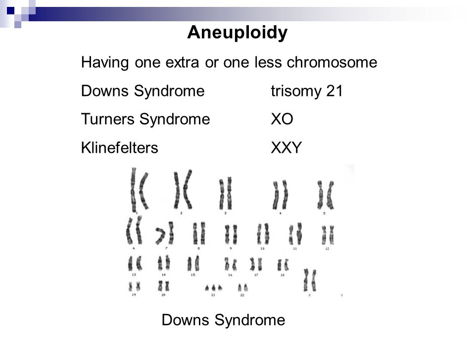 Aneuploidy Having one extra or one less chromosome Downs Syndrometrisomy 21 Turners SyndromeXO KlinefeltersXXY Downs Syndrome