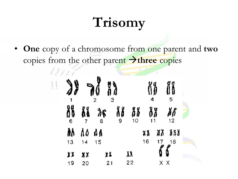 Trisomy One copy of a chromosome from one parent and two copies from the other parent  three copies