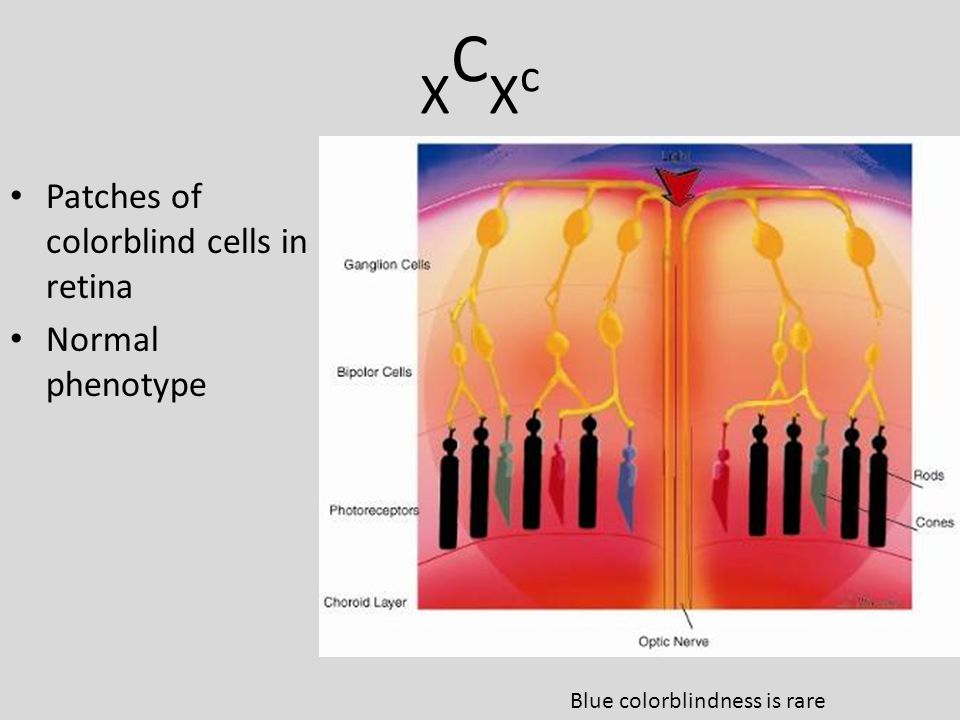 XCXcXCXc Patches of colorblind cells in retina Normal phenotype Blue colorblindness is rare