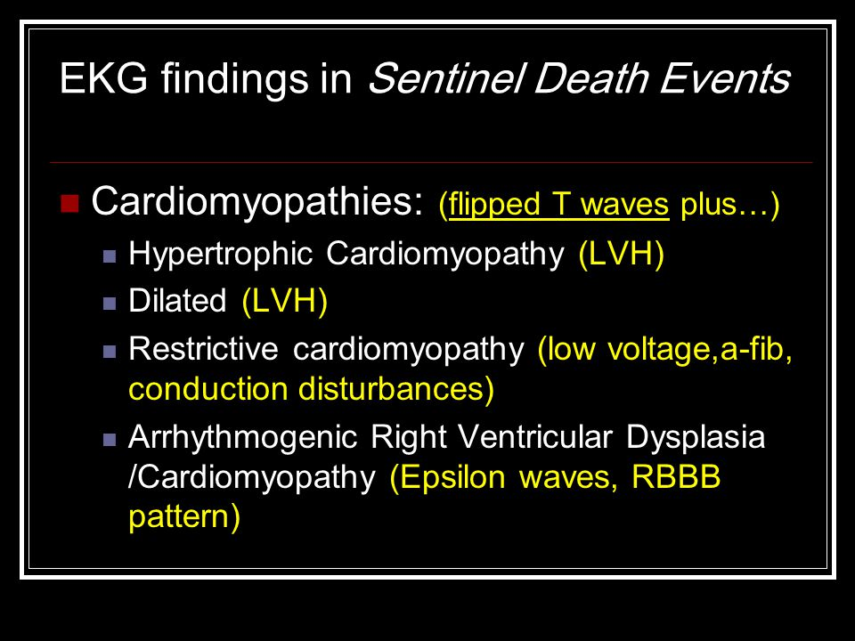 EKG findings in Sentinel Death Events Cardiomyopathies: (flipped T waves plus…) Hypertrophic Cardiomyopathy (LVH) Dilated (LVH) Restrictive cardiomyopathy (low voltage,a-fib, conduction disturbances) Arrhythmogenic Right Ventricular Dysplasia /Cardiomyopathy (Epsilon waves, RBBB pattern)