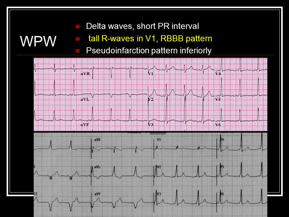 WPW Delta waves, short PR interval tall R-waves in V1, RBBB pattern Pseudoinfarction pattern inferiorly