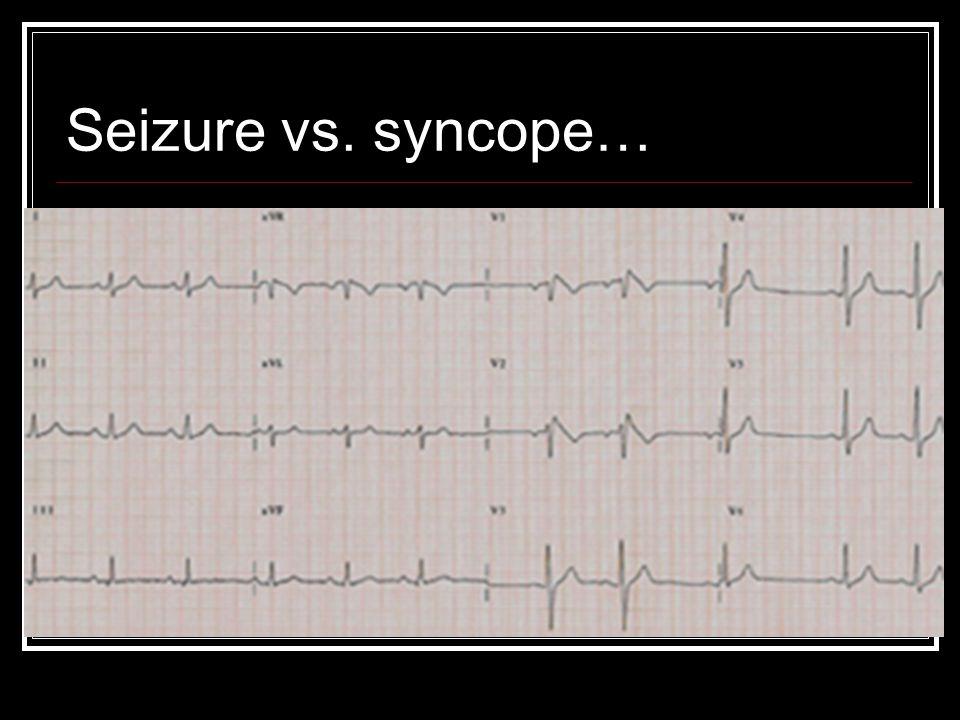 Seizure vs. syncope…