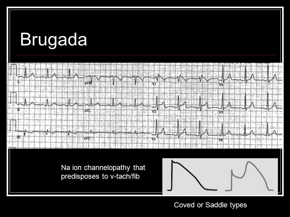 Brugada Na ion channelopathy that predisposes to v-tach/fib Coved or Saddle types