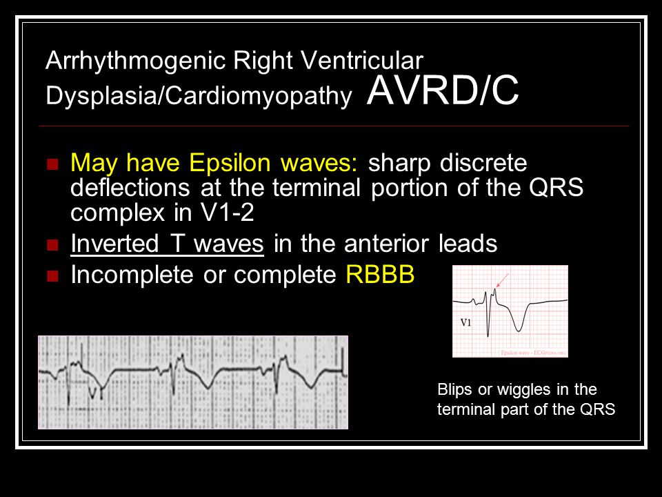 Arrhythmogenic Right Ventricular Dysplasia/Cardiomyopathy AVRD/C May have Epsilon waves: sharp discrete deflections at the terminal portion of the QRS complex in V1-2 Inverted T waves in the anterior leads Incomplete or complete RBBB Blips or wiggles in the terminal part of the QRS