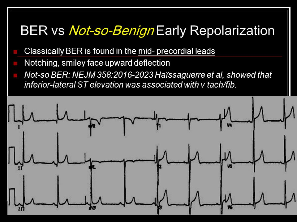 BER vs Not-so-Benign Early Repolarization Classically BER is found in the mid- precordial leads Notching, smiley face upward deflection Not-so BER: NEJM 358:2016-2023 Haïssaguerre et al, showed that inferior-lateral ST elevation was associated with v tach/fib.