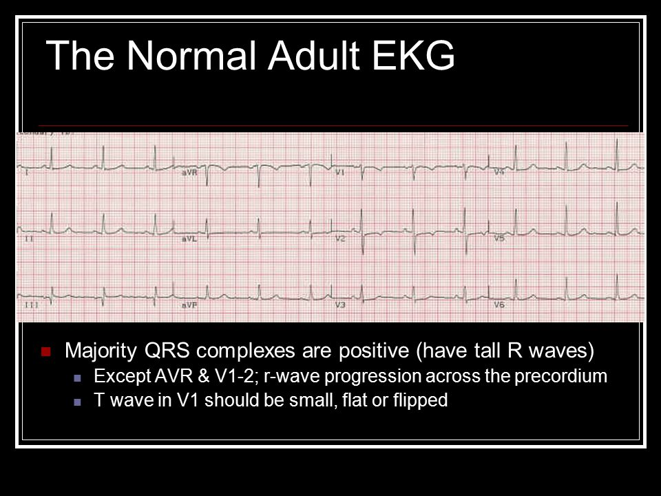 The Normal Adult EKG Majority QRS complexes are positive (have tall R waves) Except AVR & V1-2; r-wave progression across the precordium T wave in V1 should be small, flat or flipped
