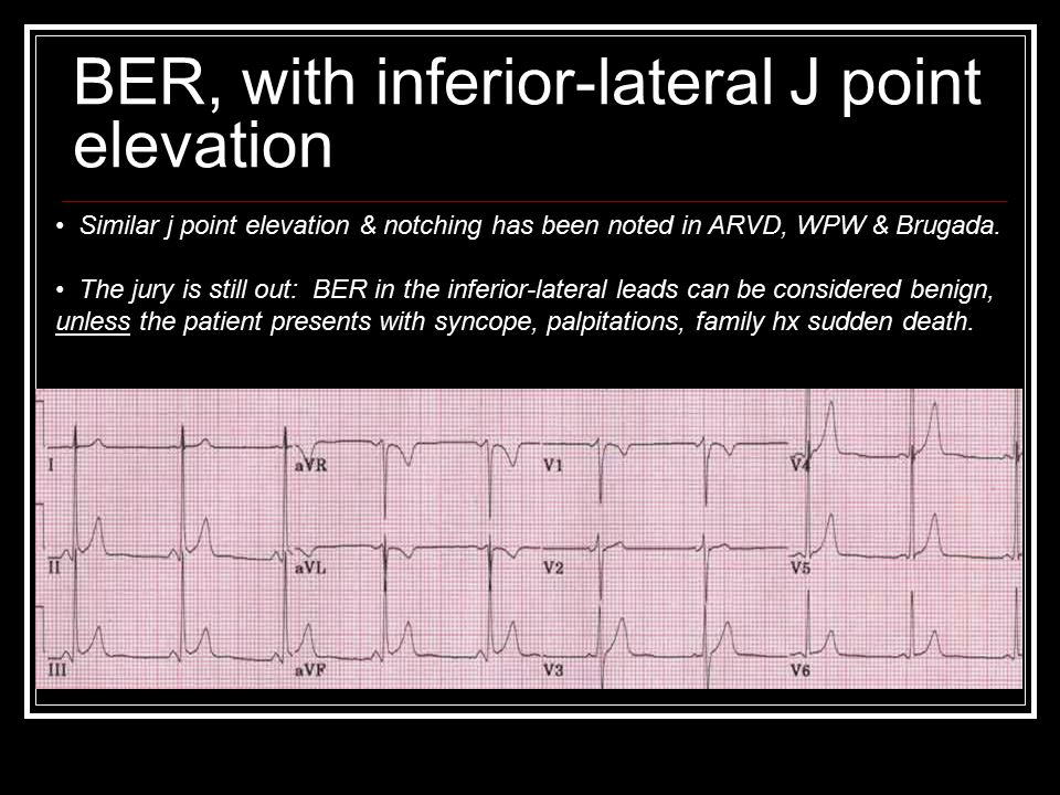 BER, with inferior-lateral J point elevation Similar j point elevation & notching has been noted in ARVD, WPW & Brugada.