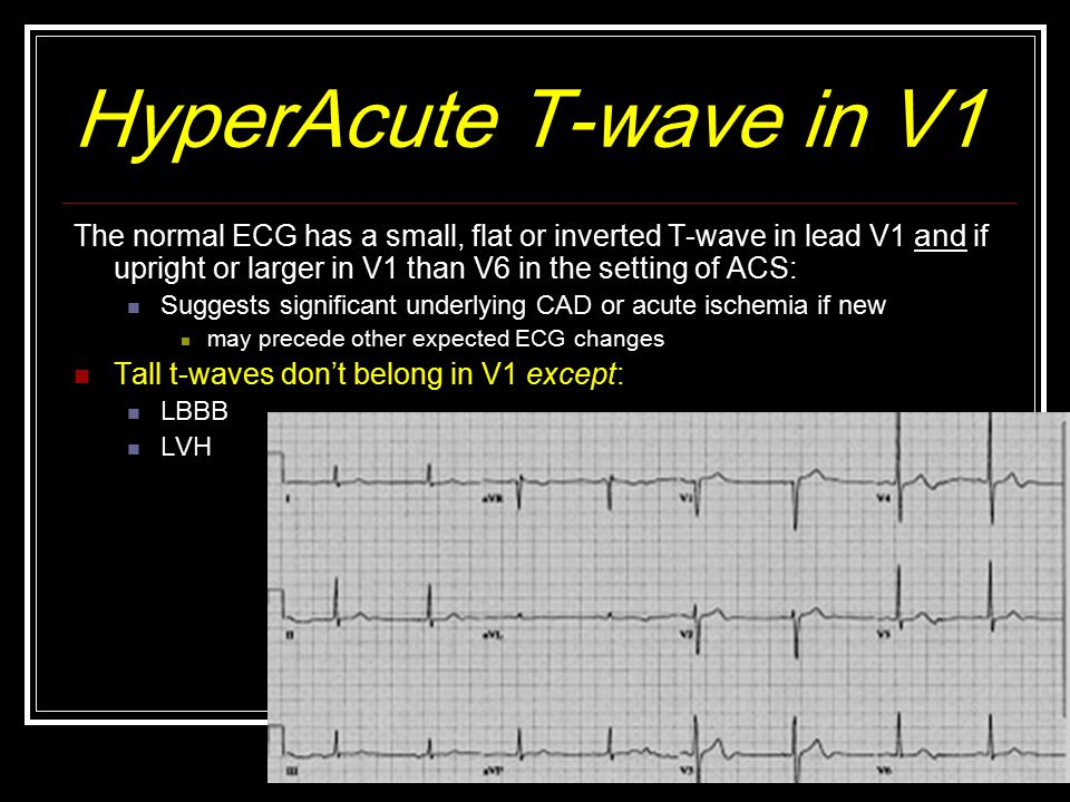 HyperAcute T-wave in V1 The normal ECG has a small, flat or inverted T-wave in lead V1 and if upright or larger in V1 than V6 in the setting of ACS: Suggests significant underlying CAD or acute ischemia if new may precede other expected ECG changes Tall t-waves don't belong in V1 except: LBBB LVH