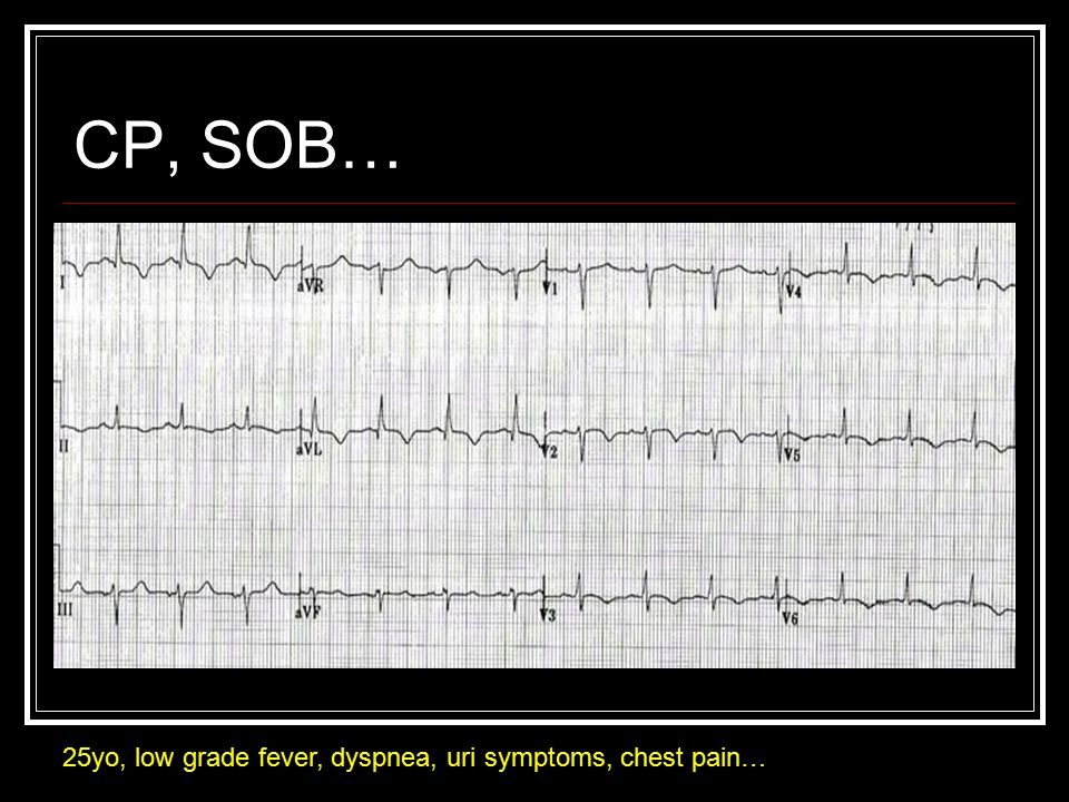 CP, SOB… 25yo, low grade fever, dyspnea, uri symptoms, chest pain…
