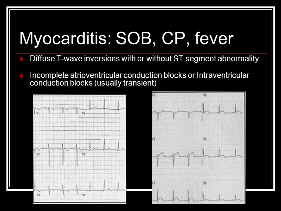 Myocarditis: SOB, CP, fever Diffuse T-wave inversions with or without ST segment abnormality Incomplete atrioventricular conduction blocks or Intraventricular conduction blocks (usually transient)