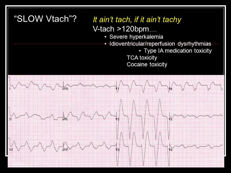 """SLOW Vtach""? It ain't tach, if it ain't tachy V-tach >120bpm …. Severe hyperkalemia Idioventricular/reperfusion dysrhythmias Type IA medication toxic"