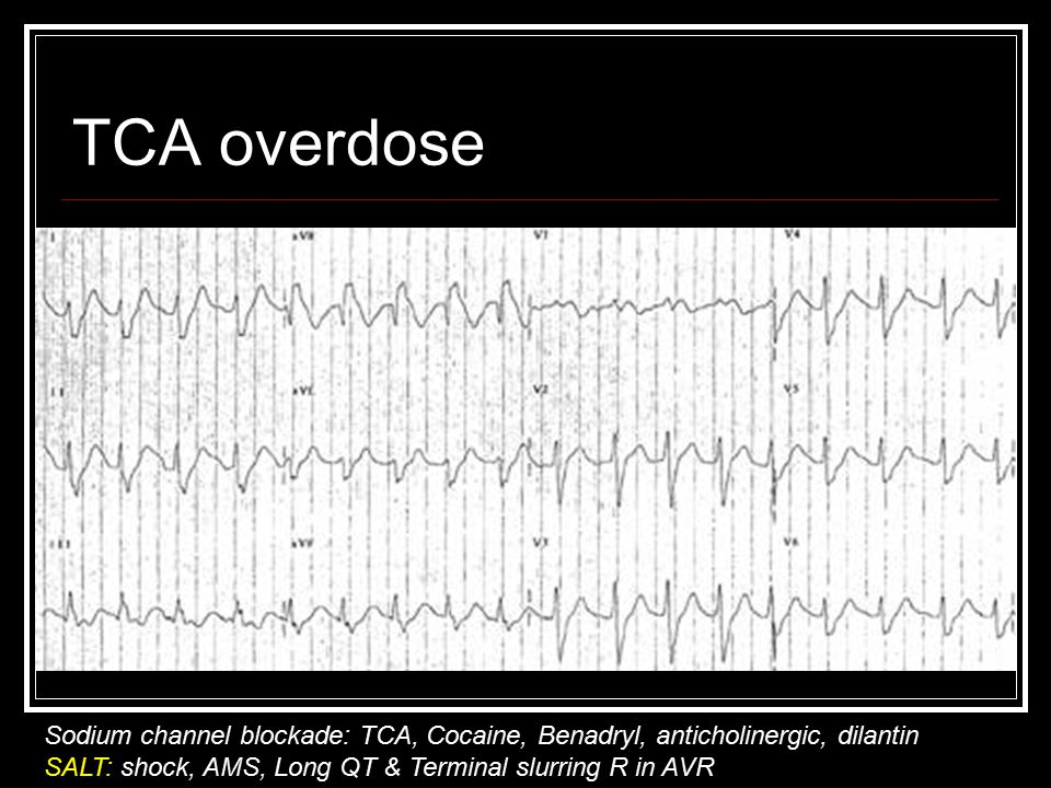 TCA overdose Sodium channel blockade: TCA, Cocaine, Benadryl, anticholinergic, dilantin SALT: shock, AMS, Long QT & Terminal slurring R in AVR