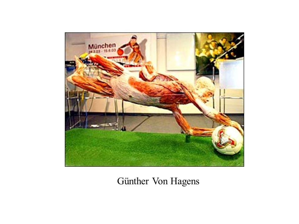 Günther Von Hagens