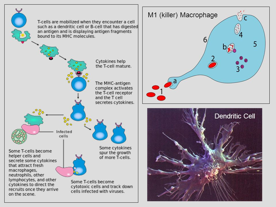Stage II Therapy: I2LT Inducing Intermediate to Low Cancer State Transitions DC Therapy