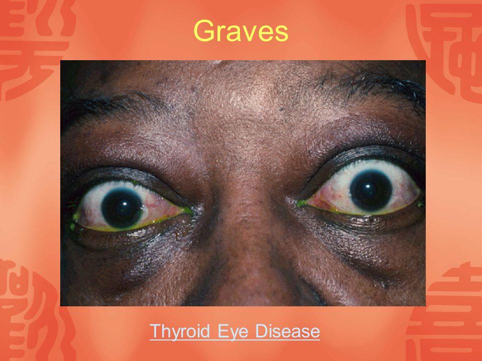 Graves Thyroid Eye Disease