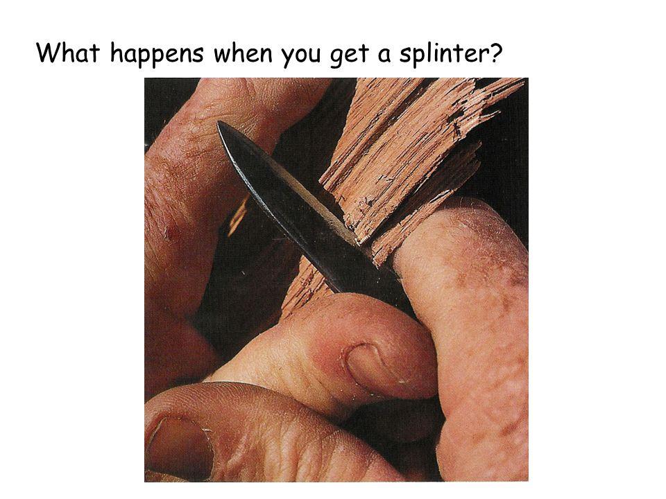 What happens when you get a splinter