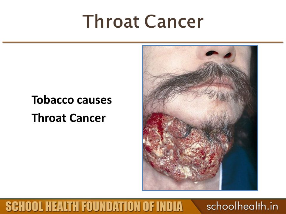 Throat Cancer Tobacco causes Throat Cancer