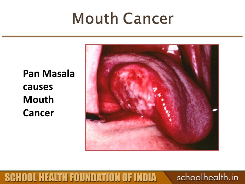 Mouth Cancer Pan Masala causes Mouth Cancer