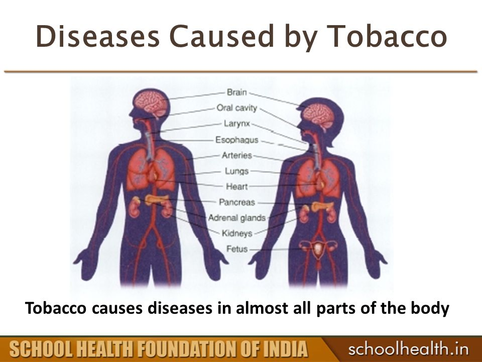 Diseases Caused by Tobacco Tobacco causes diseases in almost all parts of the body