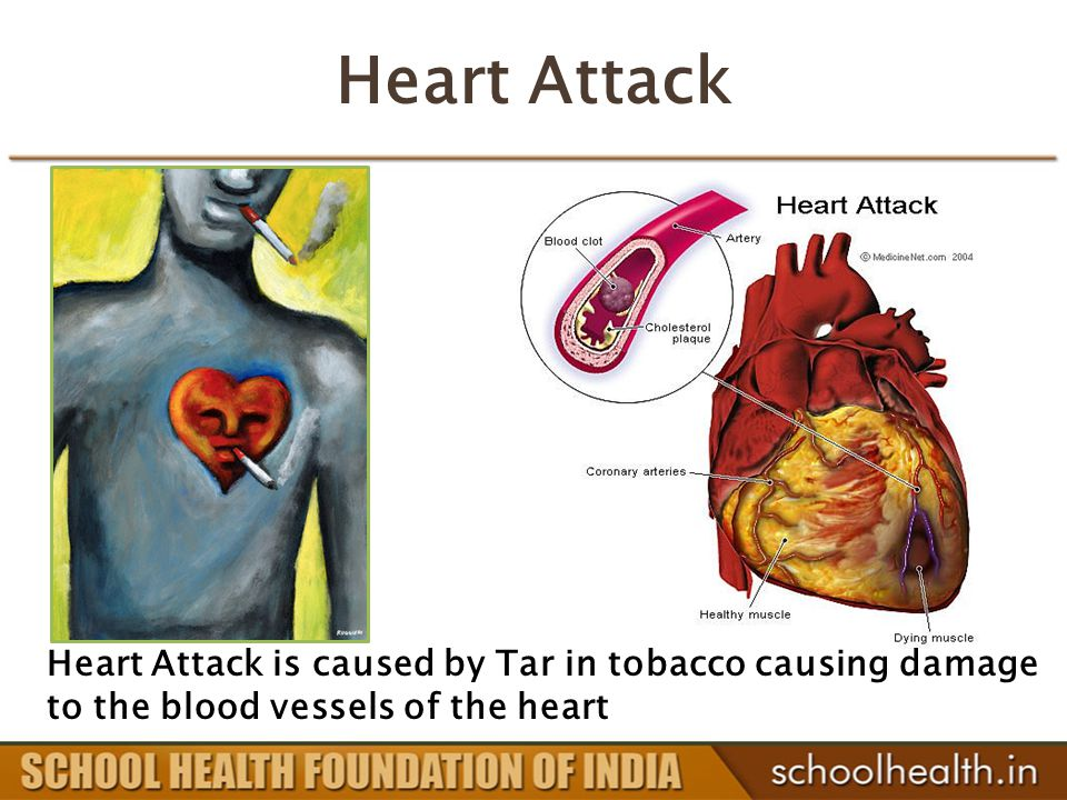 Heart Attack Heart Attack is caused by Tar in tobacco causing damage to the blood vessels of the heart