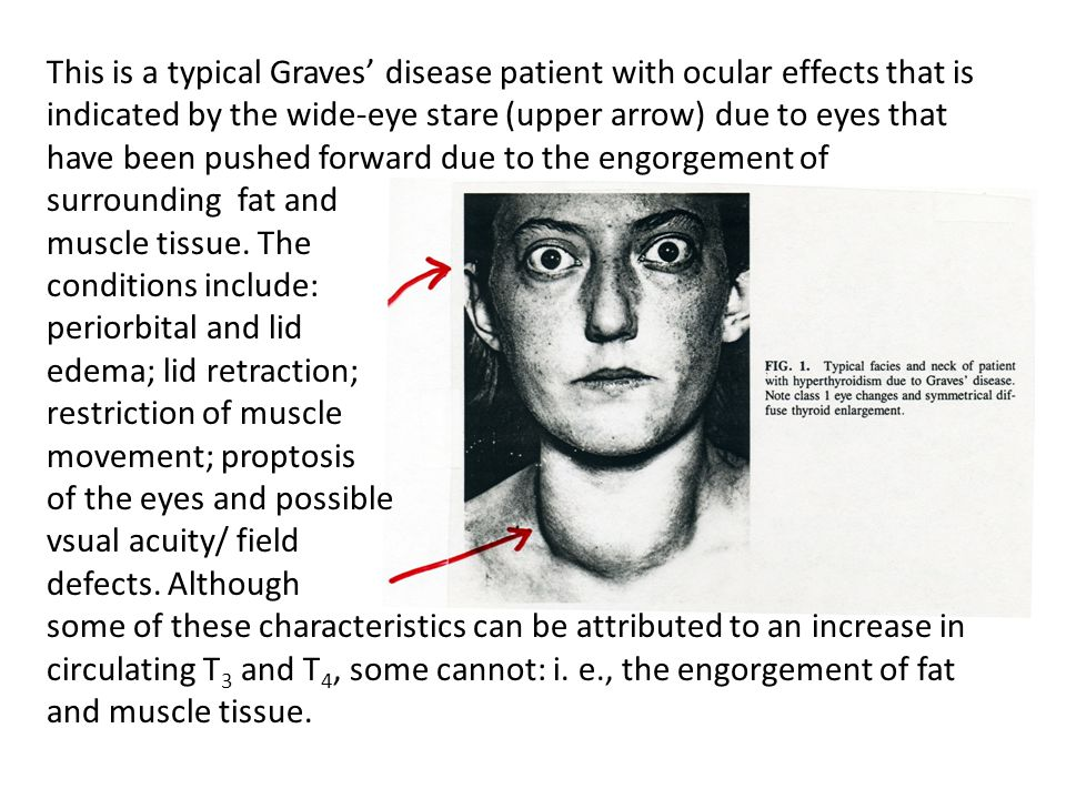 This is a typical Graves' disease patient with ocular effects that is indicated by the wide-eye stare (upper arrow) due to eyes that have been pushed forward due to the engorgement of surrounding fat and muscle tissue.