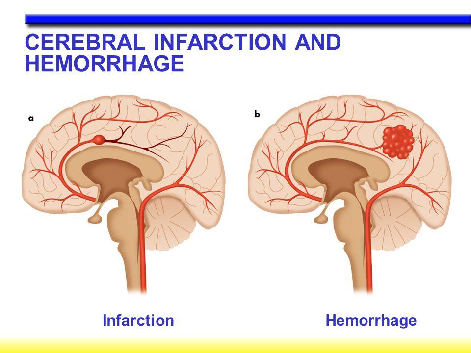 CEREBRAL INFARCTION AND HEMORRHAGE Infarction Hemorrhage