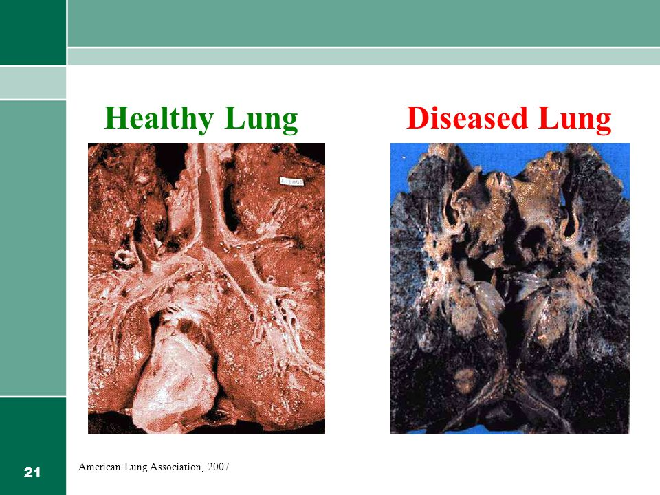 21 Healthy LungDiseased Lung American Lung Association, 2007