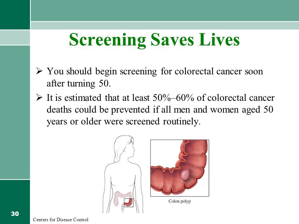 30 Screening Saves Lives  You should begin screening for colorectal cancer soon after turning 50.