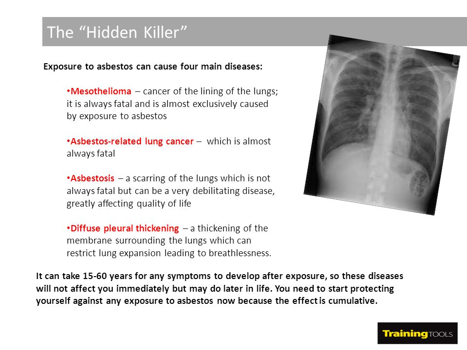 The Hidden Killer Exposure to asbestos can cause four main diseases: Mesothelioma – cancer of the lining of the lungs; it is always fatal and is almost exclusively caused by exposure to asbestos Asbestos-related lung cancer – which is almost always fatal Asbestosis – a scarring of the lungs which is not always fatal but can be a very debilitating disease, greatly affecting quality of life Diffuse pleural thickening – a thickening of the membrane surrounding the lungs which can restrict lung expansion leading to breathlessness.