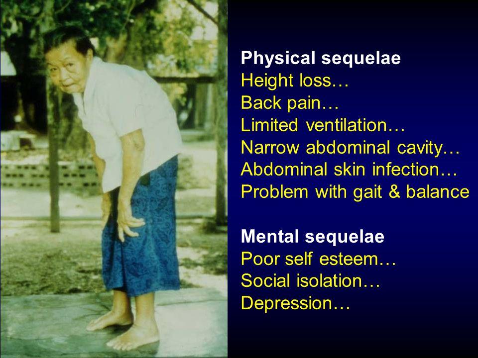 Estrogen deficiency Rene Rizzoli, 2006