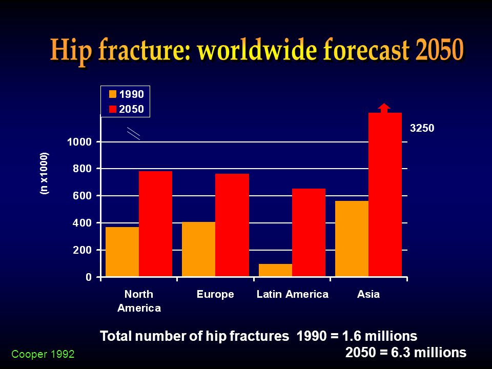 Cooper 1992 3250 Total number of hip fractures 1990 = 1.6 millions 2050 = 6.3 millions (n x1000)