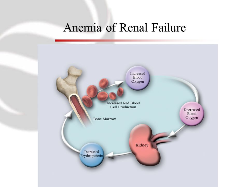 Anemia of Renal Failure