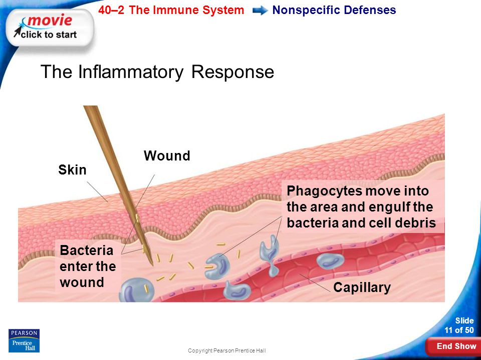 End Show 40–2 The Immune System Slide 11 of 50 Copyright Pearson Prentice Hall Nonspecific Defenses The Inflammatory Response Skin Wound Phagocytes mo