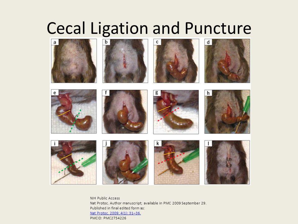 Cecal Ligation and Puncture NIH Public Access Nat Protoc.
