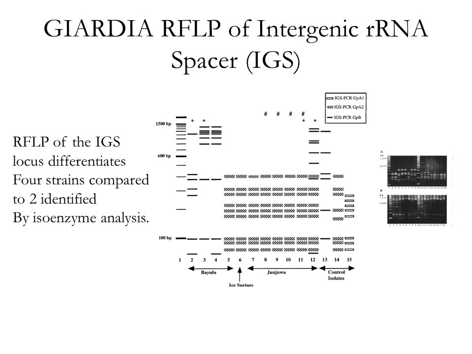 GIARDIA RFLP of Intergenic rRNA Spacer (IGS) RFLP of the IGS locus differentiates Four strains compared to 2 identified By isoenzyme analysis.