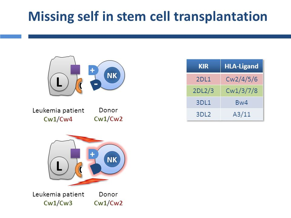 Missing self in stem cell transplantation NK + - L L Leukemia patient Cw1/Cw4 Donor Cw1/Cw2
