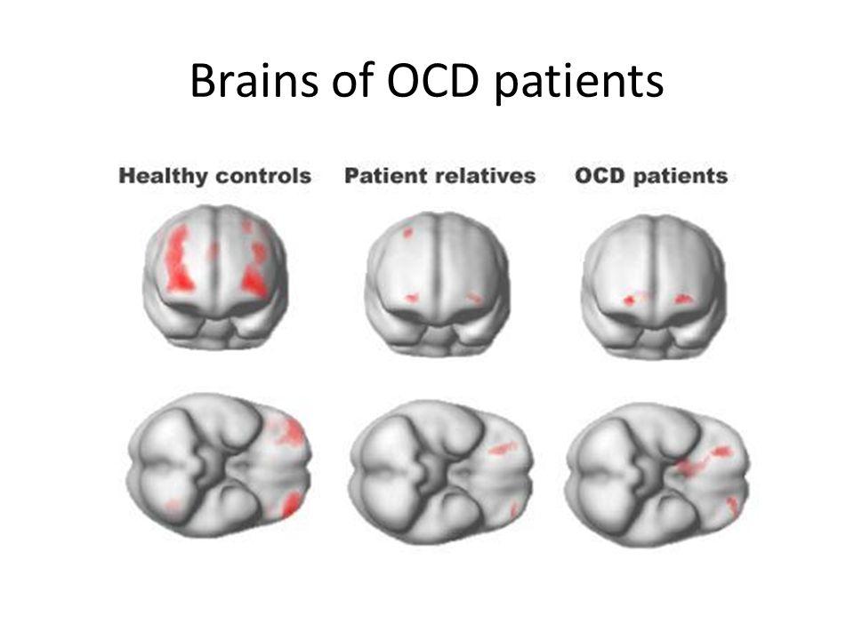 Brains of OCD patients