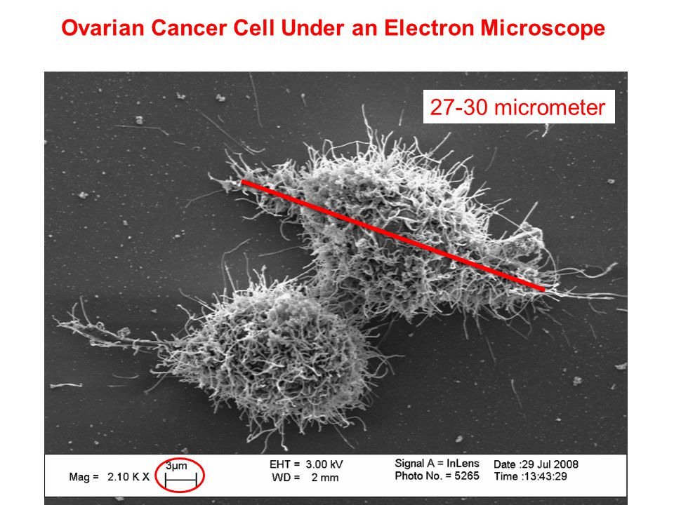 Ovarian Cancer Cell Under an Electron Microscope 27-30 micrometer
