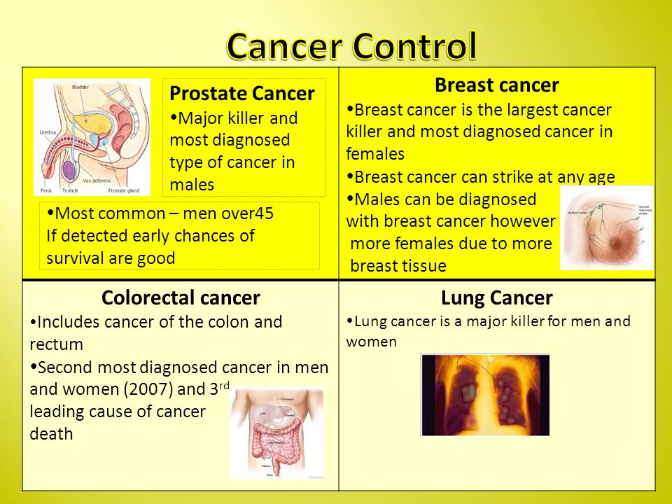 Breast cancer  Breast cancer is the largest cancer killer and most diagnosed cancer in females  Breast cancer can strike at any age  Males can be diagnosed with breast cancer however more females due to more breast tissue Colorectal cancer  Includes cancer of the colon and rectum  Second most diagnosed cancer in men and women (2007) and 3 rd leading cause of cancer death Lung Cancer  Lung cancer is a major killer for men and women Prostate Cancer  Major killer and most diagnosed type of cancer in males  Most common – men over45 If detected early chances of survival are good