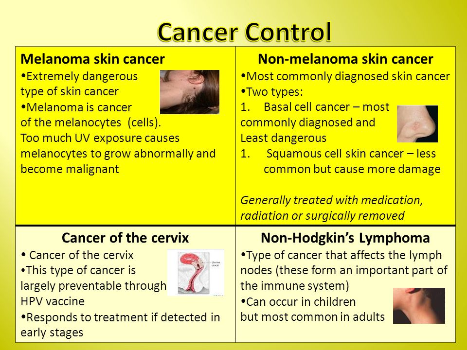Melanoma skin cancer  Extremely dangerous type of skin cancer  Melanoma is cancer of the melanocytes (cells).