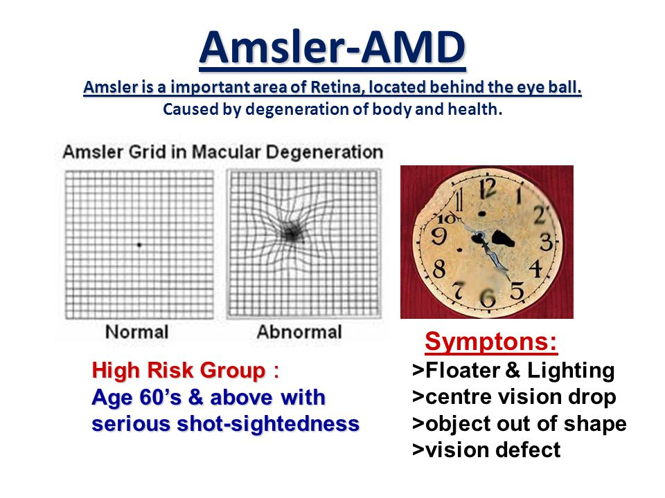 Amsler-AMD Amsler is a important area of Retina, located behind the eye ball.