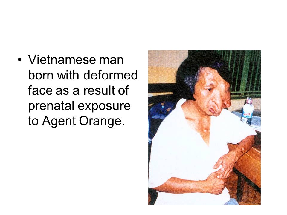 Vietnamese man born with deformed face as a result of prenatal exposure to Agent Orange.