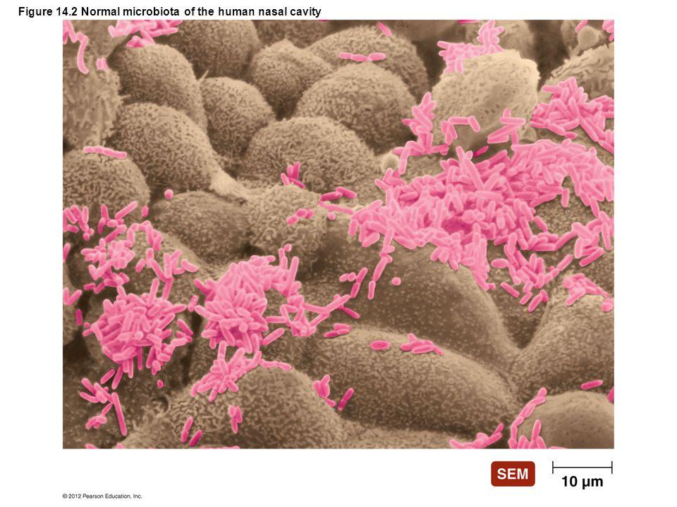 Figure 14.11 Portals of exit Ear (earwax) Broken skin (blood) Skin (flakes) Anus (feces) Urethra (urine) Seminal vesicles (semen and lubricating secretions) Eyes (tears) Nose (secretions) Mouth (saliva, sputum) In females: Mammary glands (milk, secretions) Vagina (secretions, blood)