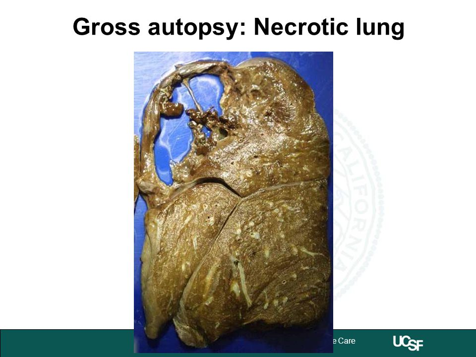 University of California,San Francisco 3 Department of Anesthesia and Perioperative Care Gross autopsy: Necrotic lung