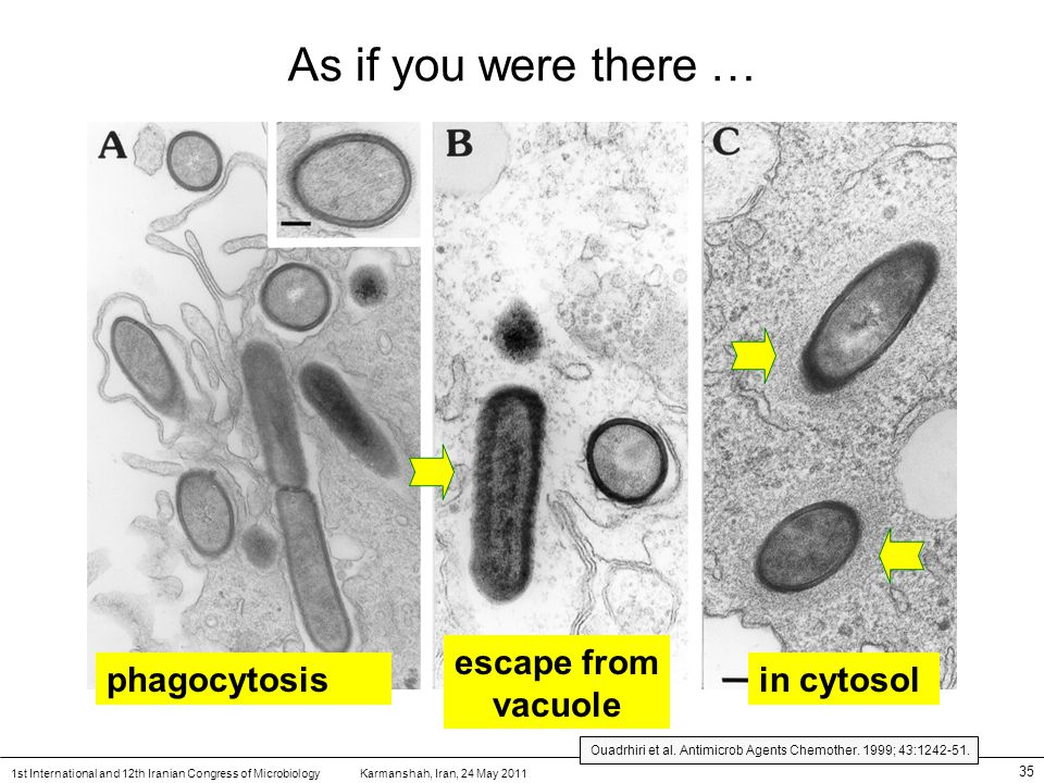 Karmanshah, Iran, 24 May 20111st International and 12th Iranian Congress of Microbiology 35 As if you were there … phagocytosis escape from vacuole in