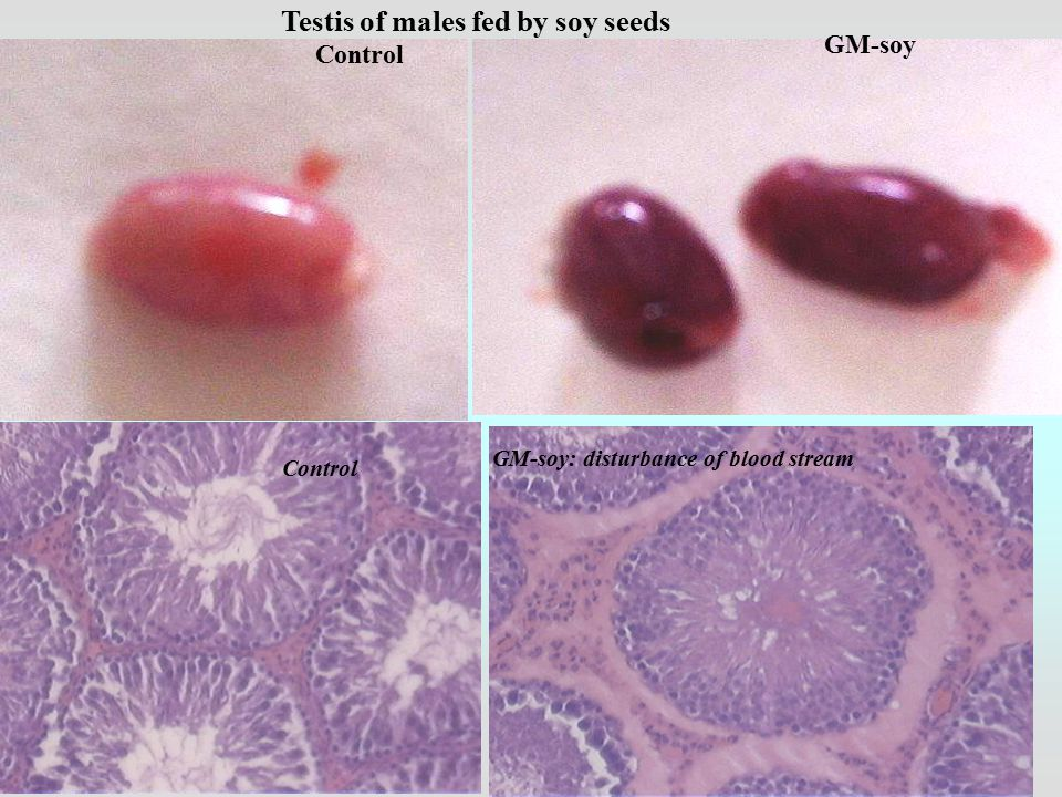 GM-soy Control GM-soy: disturbance of blood stream Control Testis of males fed by soy seeds