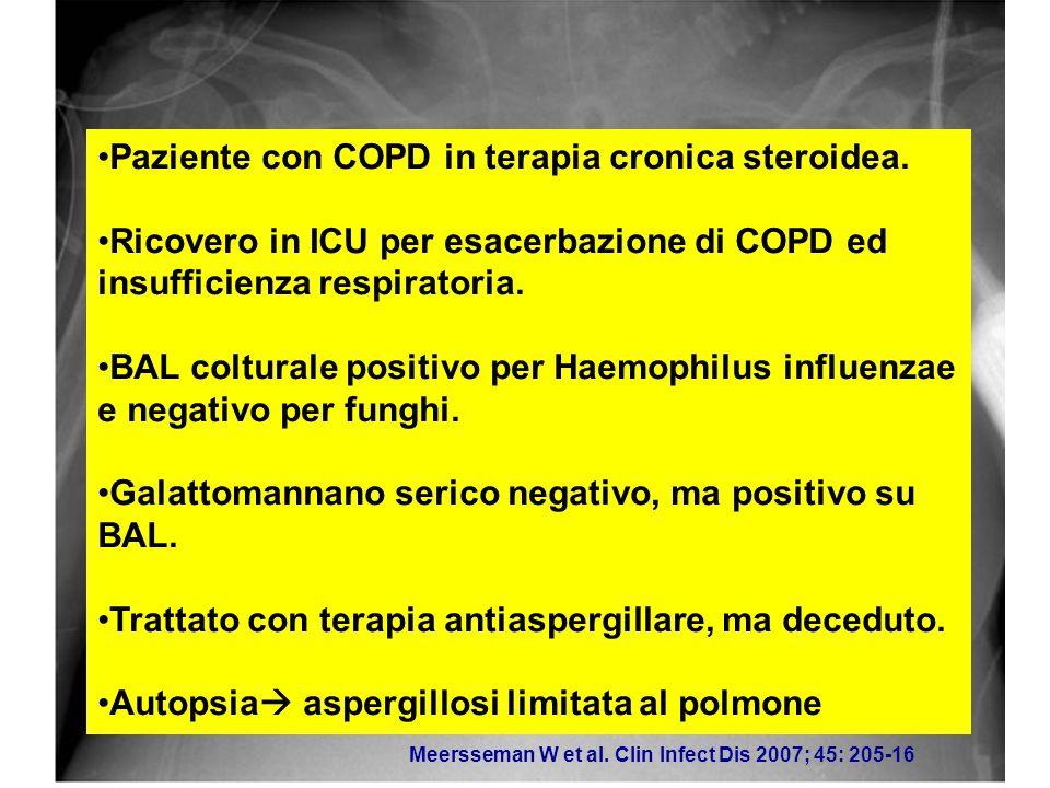 Paziente con COPD in terapia cronica steroidea.