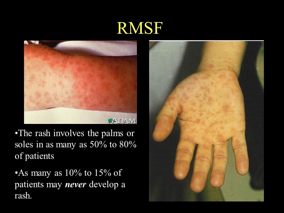 RMSF The rash involves the palms or soles in as many as 50% to 80% of patients As many as 10% to 15% of patients may never develop a rash.