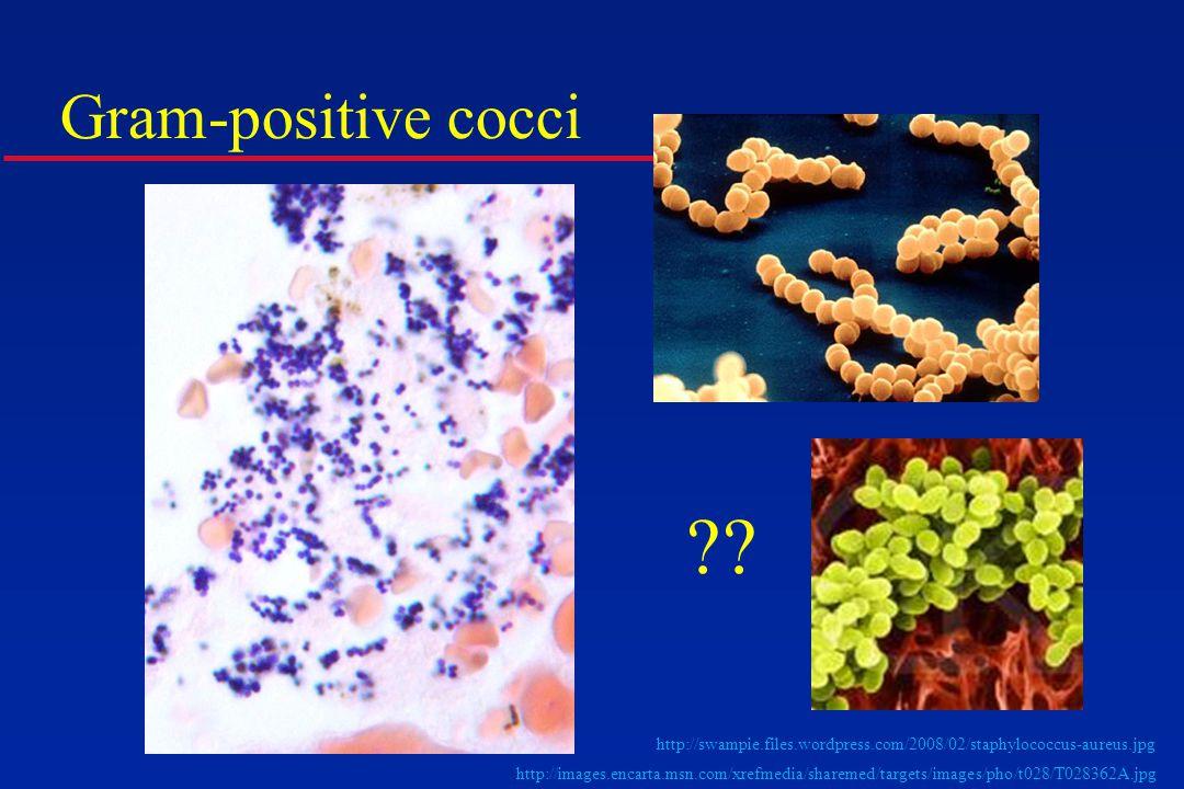 http://swampie.files.wordpress.com/2008/02/staphylococcus-aureus.jpg http://images.encarta.msn.com/xrefmedia/sharemed/targets/images/pho/t028/T028362A.jpg