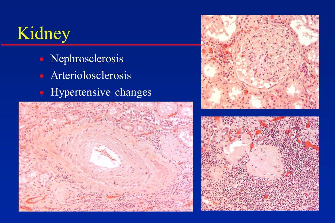 Kidney  Nephrosclerosis  Arteriolosclerosis  Hypertensive changes